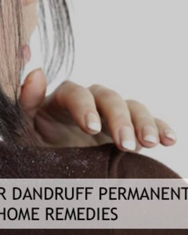 how-to-remove-dandruff-permanently