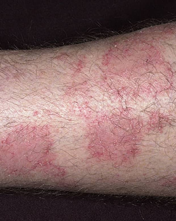 how-to-deal-with-eczema
