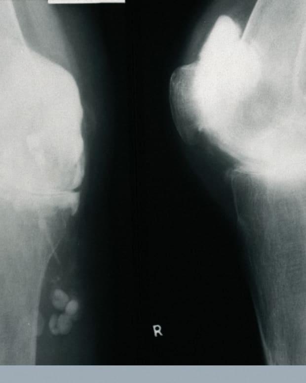 arthritis-and-the-public-health-burden