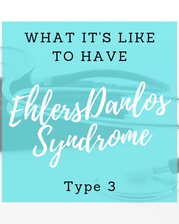 what-its-like-to-live-with-hypermobile-ehlers-danlos-syndrome-or-eds-type-3