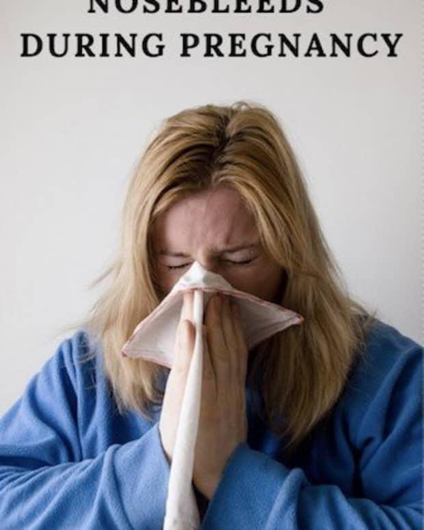 nosebleeds-during-pregnancy-should-you-be-concerned
