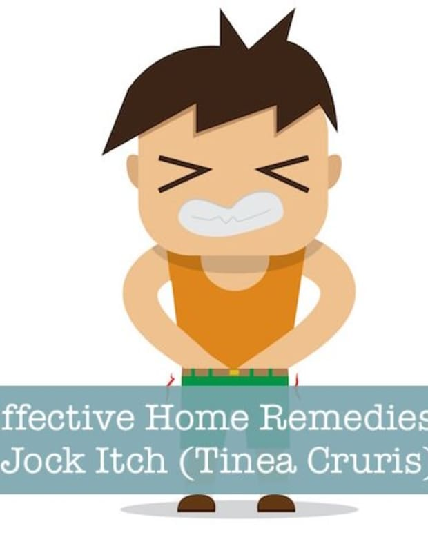 home-remedies-for-jock-itch