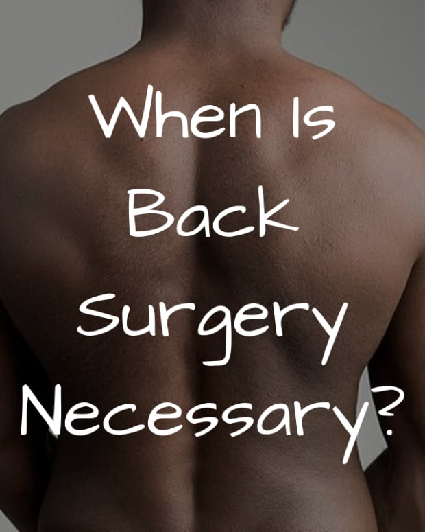 is-back-surgery-necessary