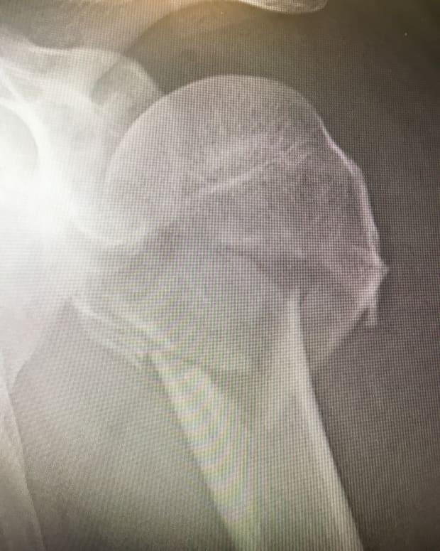 dealing-with-a-broken-shoulder