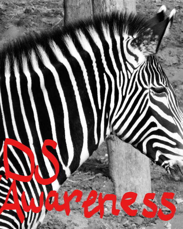 what-is-elhers-danlos-syndrome