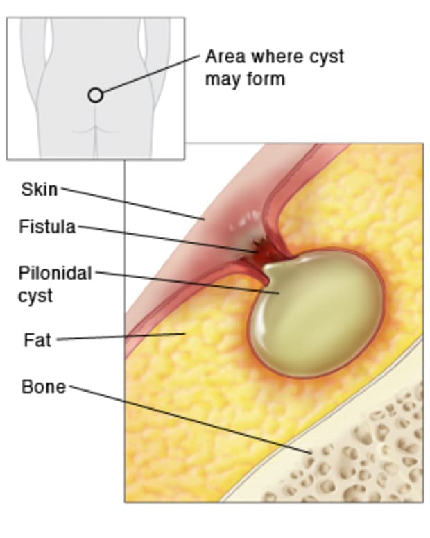 definitive-guide-to-pilonidal-cysts