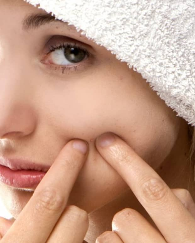 blackheads-and-how-to-get-clear-skin