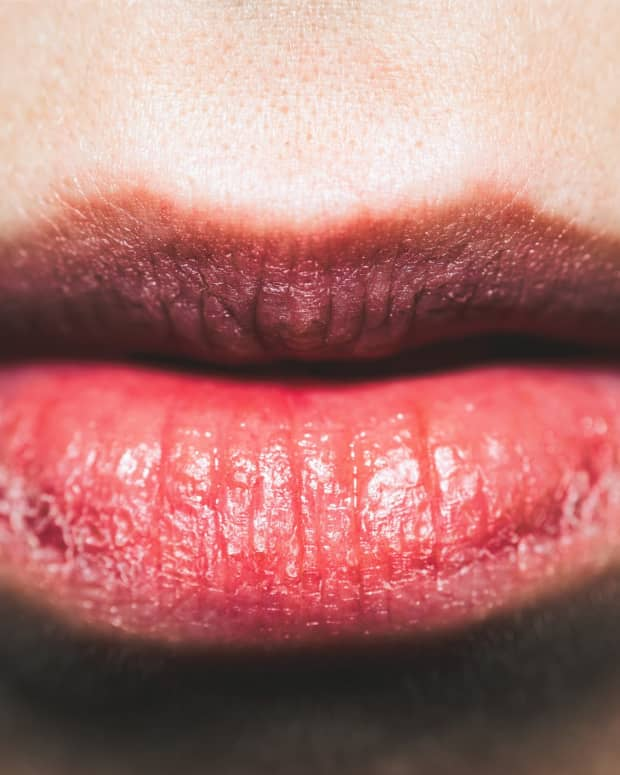 10-secrets-to-getting-rid-of-dry-skin-on-lips