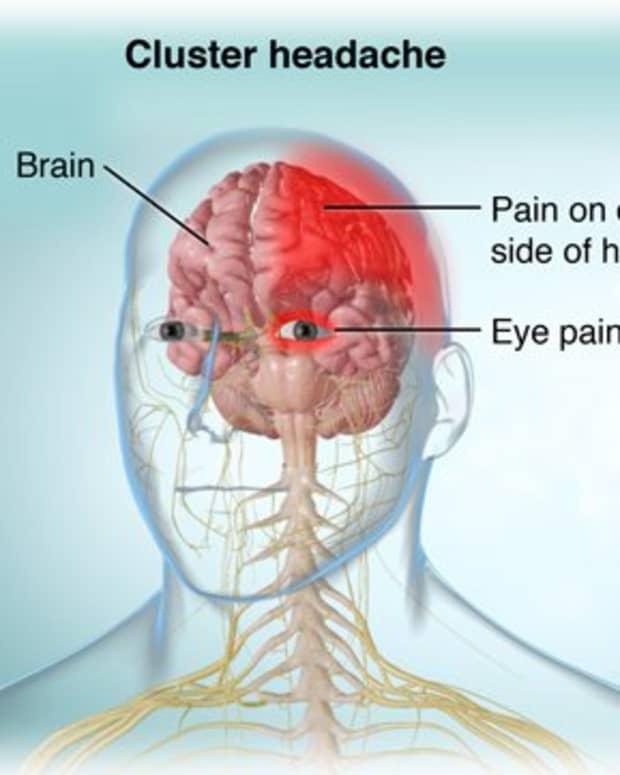 cluster-headache-characteristics