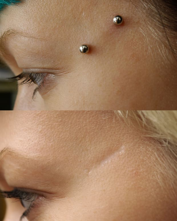 dermal-piercing-types-pictures-procedure-after-care-and-risks