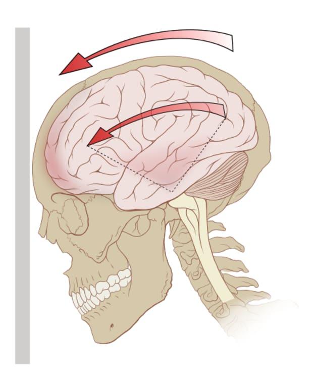 the-symptoms-of-a-concussion