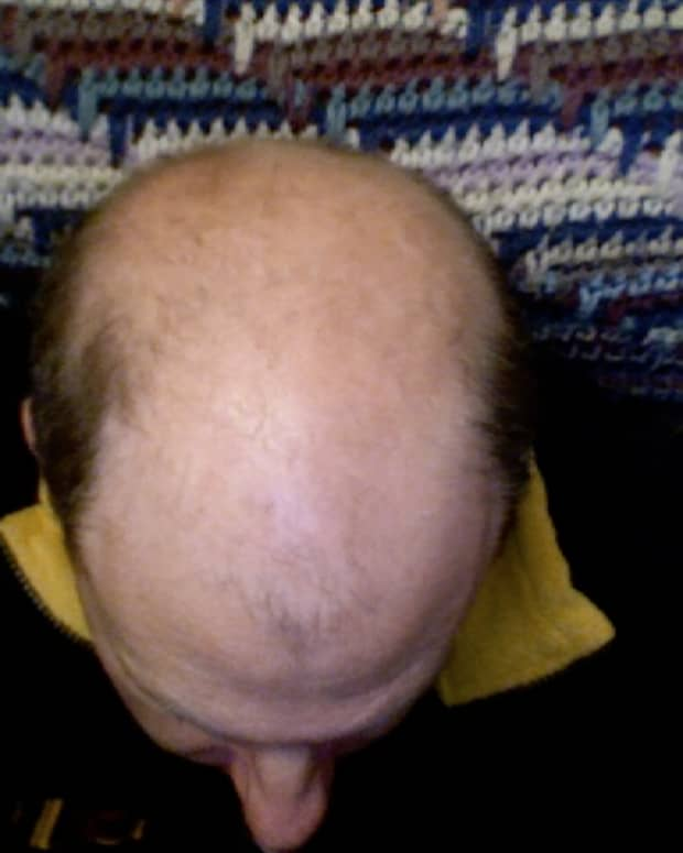 losing-your-hair-and-what-to-do-about-it