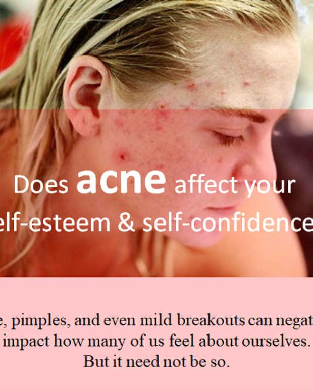 regain-your_self-esteem-and-self-confidence_fight-acne-aggressively