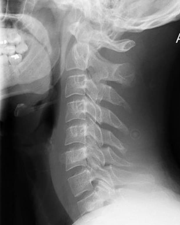 Cervical Spine with straightening of normal curve due to muscle spasms after motor vehicle accident.  Creative Commons, Flickr.com.