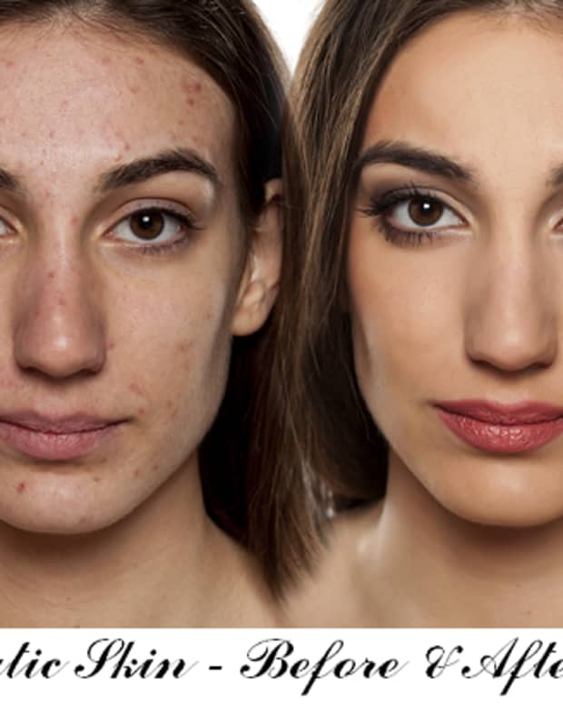 applying_makeup-for-acne_prone-skin-whilst_fighting-acne