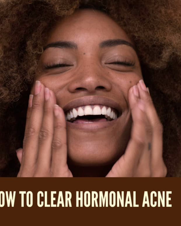 how-to-clear-hormonal-acne