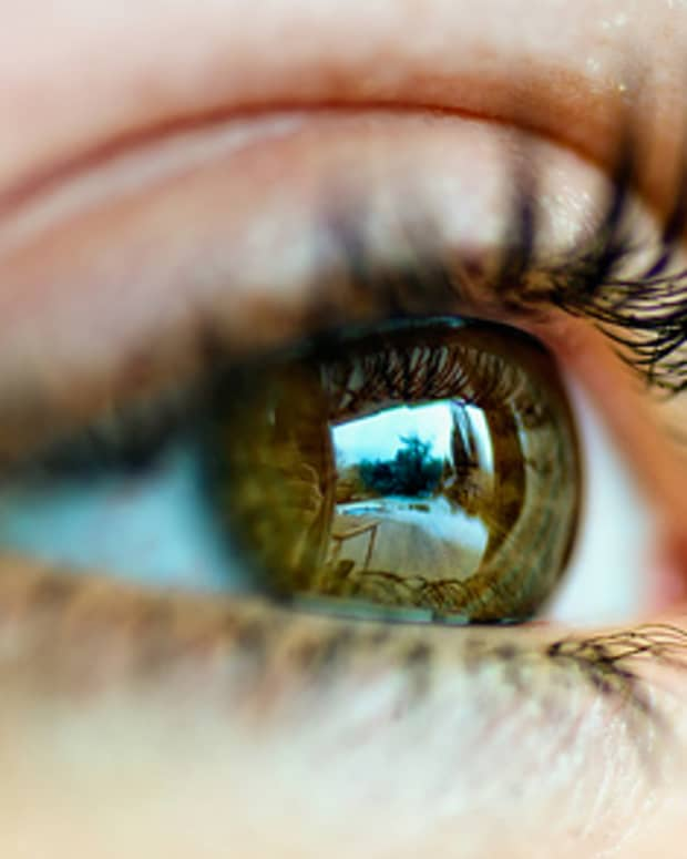 what-to-expect-after-cataract-surgery