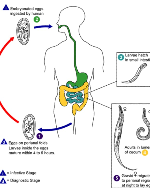 how-to-get-rid-of-pinworms-itchy-anus
