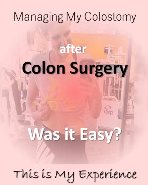 colostomy_managing-colostomy_after-colon-surgery