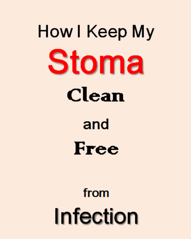 stoma-care-after-an-ostomy