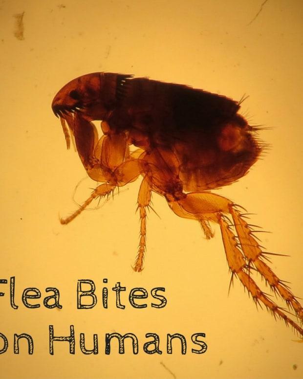 flea-bites-on-humans-symptoms-and-treatment