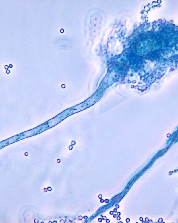 aspergillus-mold-aspergillosis-and-health