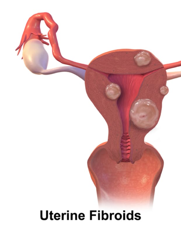 uterinefibroidsmyomectomysurgery