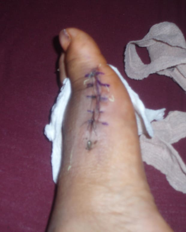 my-bunion-surgery-after-6-months-of-recovery
