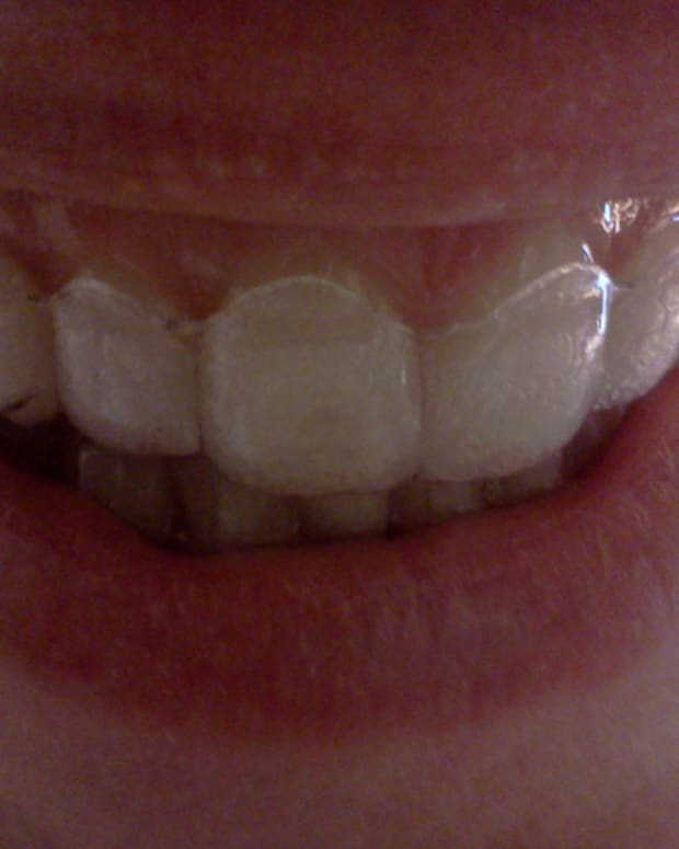 how-to-prevent-cavaties-with-invisalign