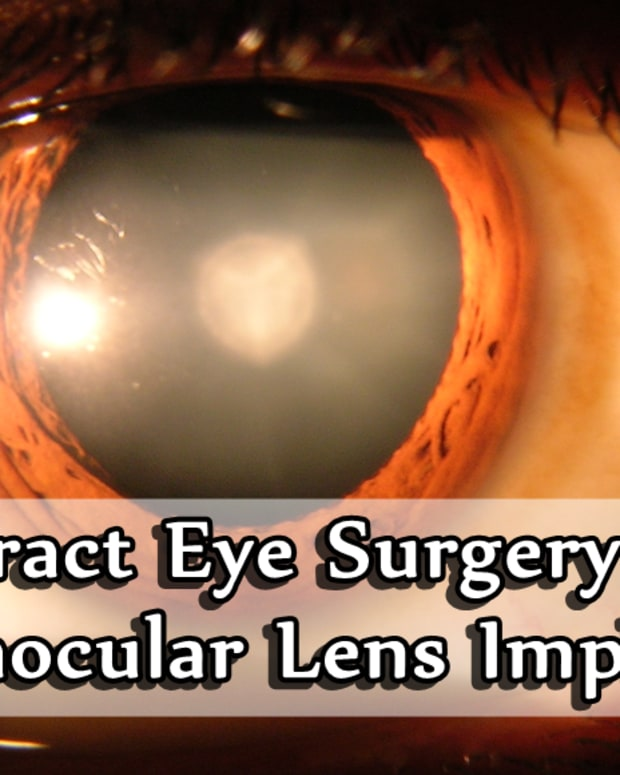 cataract-surgery-intraocular-lenses-and-more