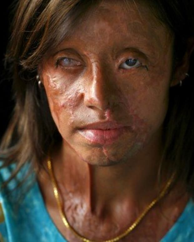acid-attacks-on-women-and-how-you-can-help