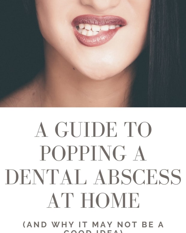 home-treatment-how-to-pop-a-dental-abscess-by-yourself