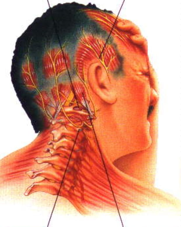 cervicogenic-headaches