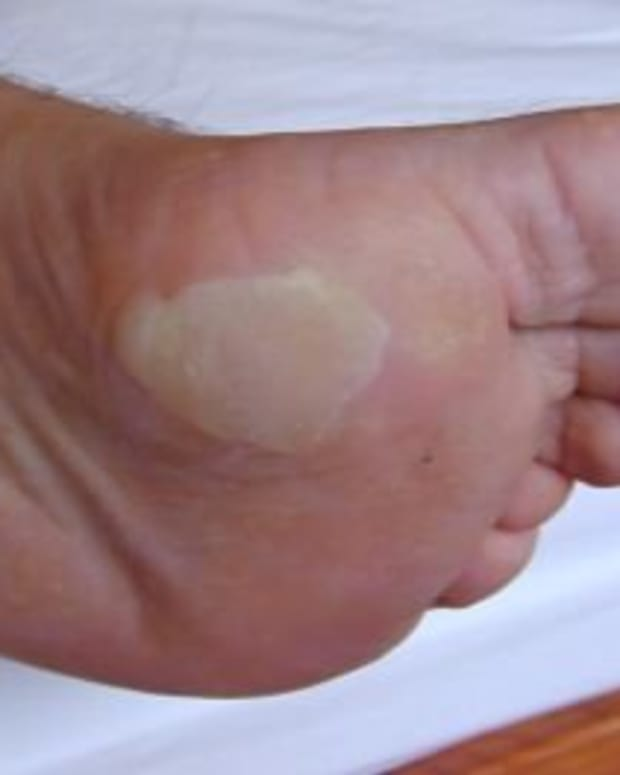 blister-treatment-causes-and-care