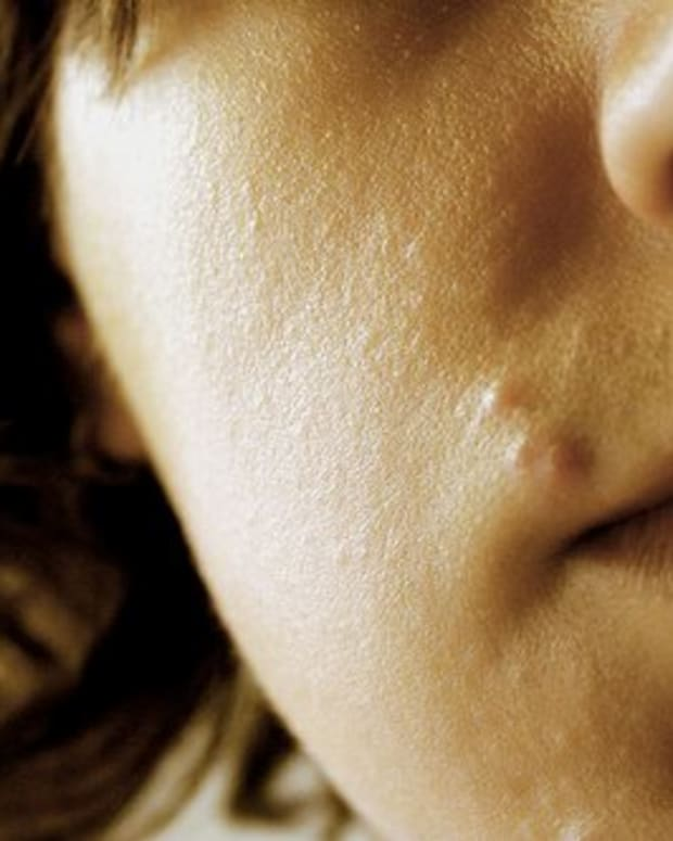 home-remedies-for-pimples-zits-and-skin-blemishes