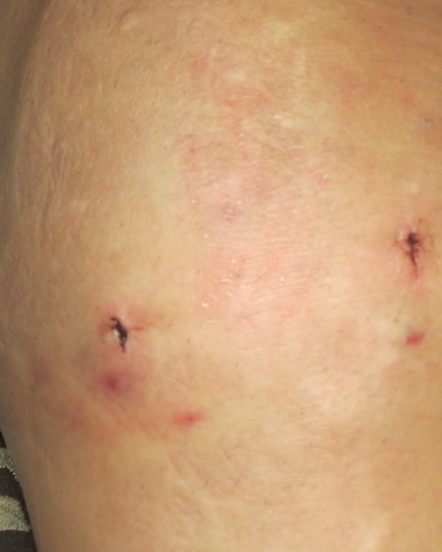 what-to-expect-after-meniscus-surgery-knee-arthroscopy-recovery-after-a-partial-meniscectomy
