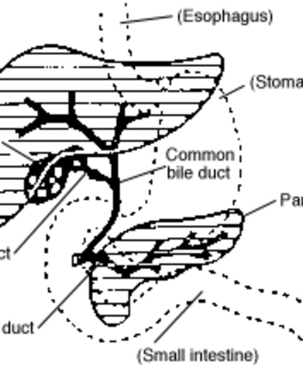 livercysts
