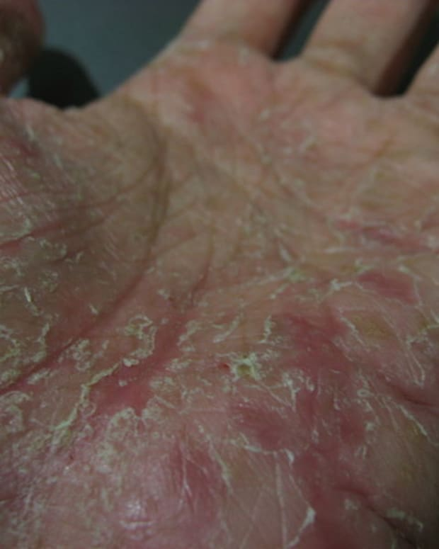 how-i-treated-my-pompholyx-eczema-dyshidrotic-dermatitis-skin-condition