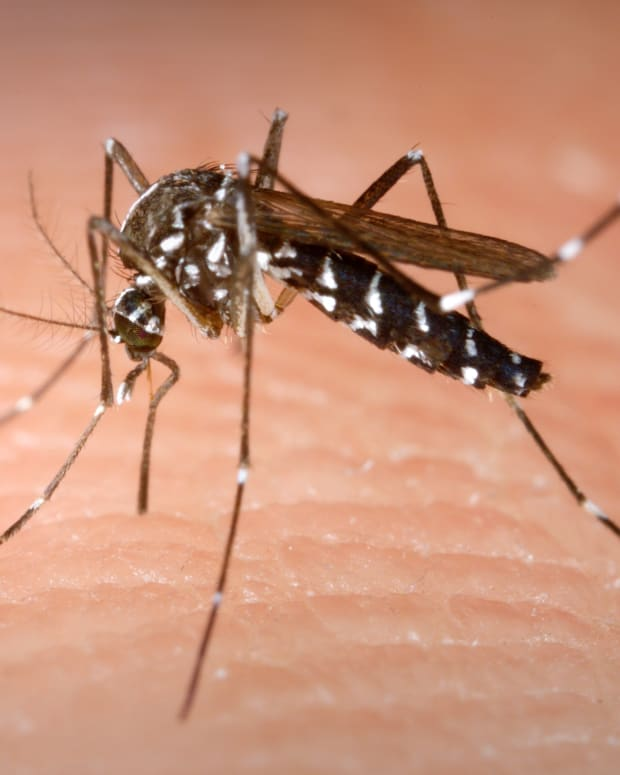 natural-remedies-to-treat-a-mosquito-bite