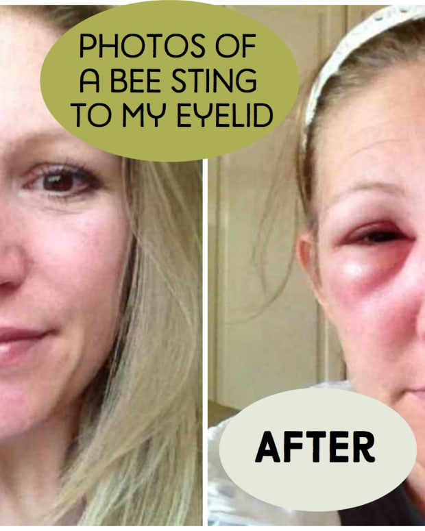 bee-stings-on-the-eye