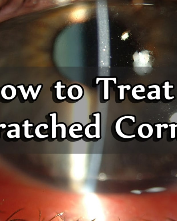 how-to-treat-a-scratched-cornea