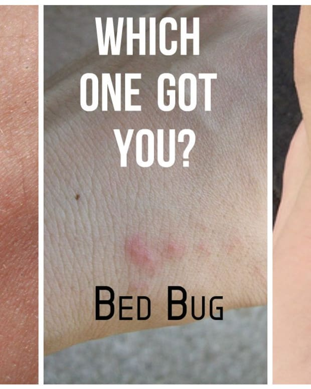 mosquito-bite-pictures-versus-bed-bug-bites