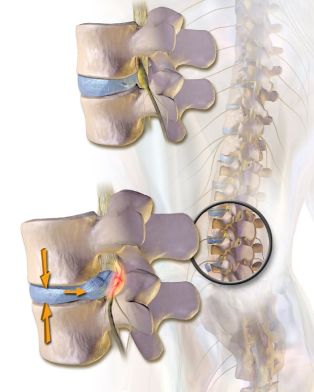 herniated-disc-exercises