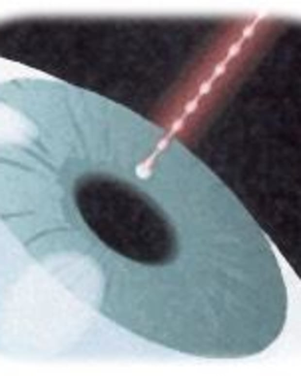 laser-glaucoma-treatment
