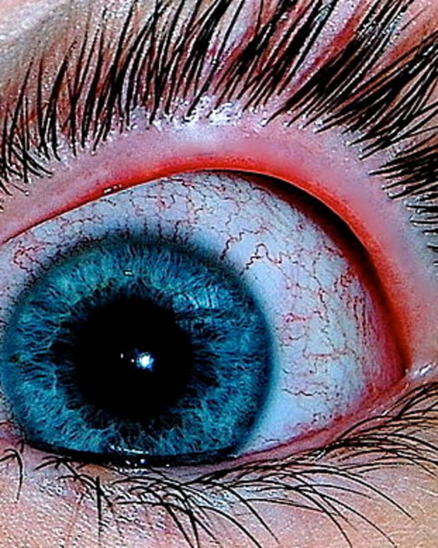 conjunctivitis-pink-eye-in-older-adults