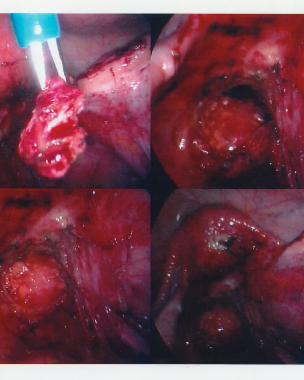 Removing severe endometriosis during a laparoscopy.