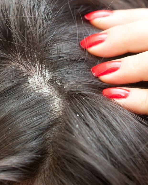 cure-for-dry-flaky-scalp-at-your-home