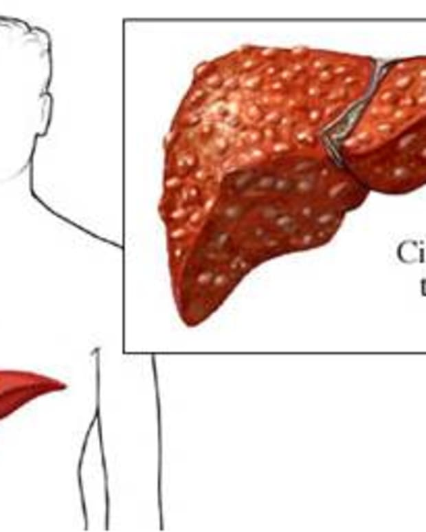 autoimmune-hepatitis-causes-cirrhosis-of-the-liver