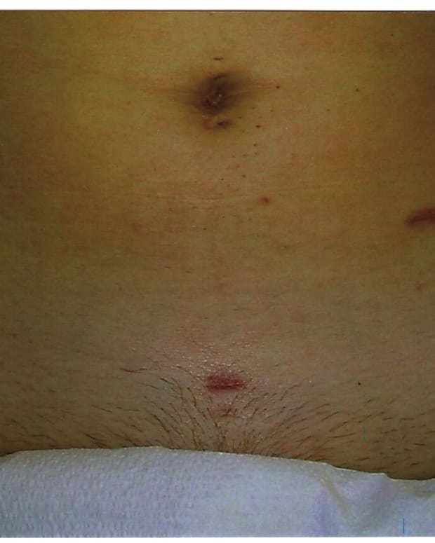 signs-of-apendicitis