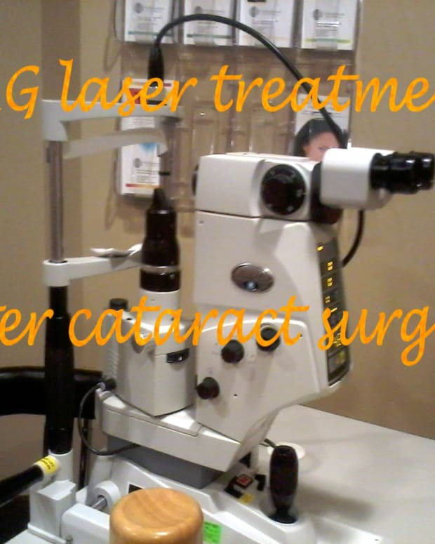 yag-laser-review-after-cataract-surgery-with-crystalens-implant